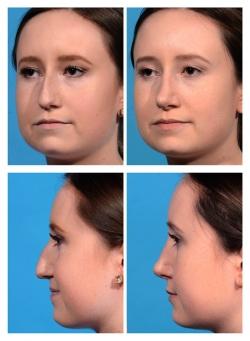 Rhinoplasty: Nasal Deviation, Nasal Hump, Bulbous Droopy Tip