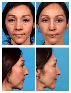 Rhinoplasty: Wide, Nasal Deviation, Dorsal Hump