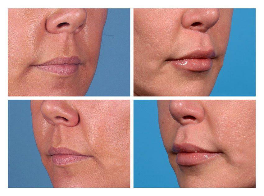 Lip Lift Patient 2