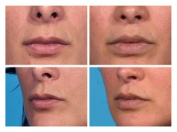 Lip Lift Patient 1