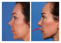 Lip Lift Patient 2