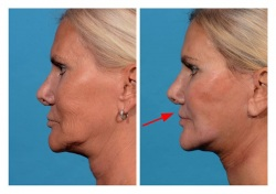 Lip Lift Patient 4