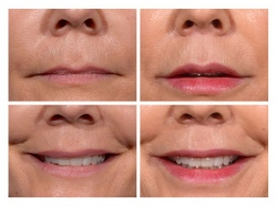 Lip Lift Patient 5