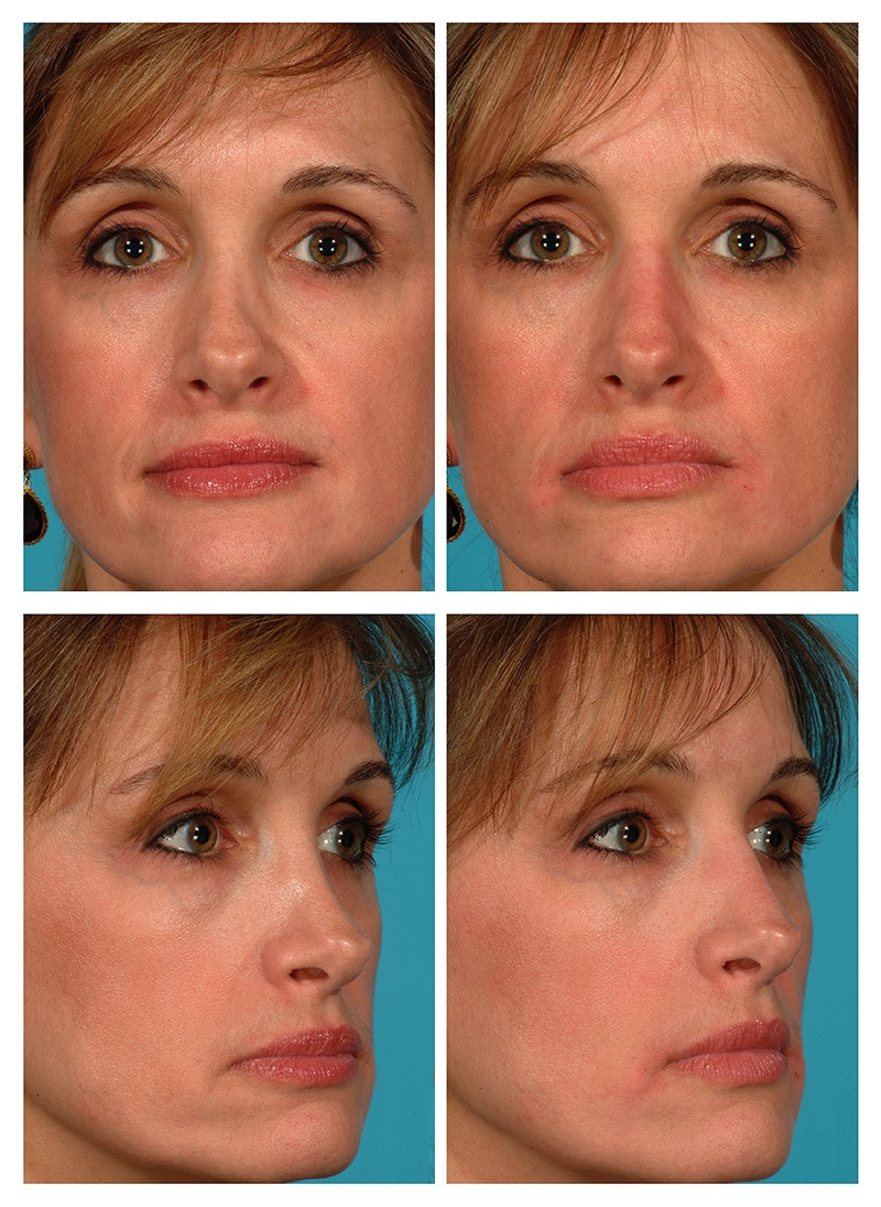Liquid Rhinoplasty Before And After Pictures